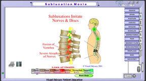 sublux_movie_lumbar_phase3_thumb