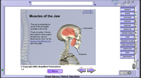 whiplash__anatomy14_thumb